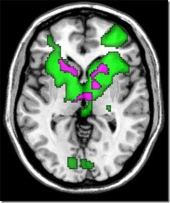 褒められて時の脳